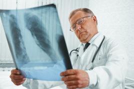 Die Lungenentzündung oder auch Pneumonie